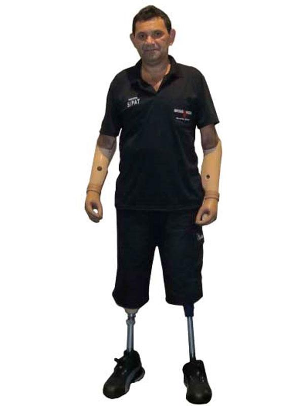 acidente-proteses-severino
