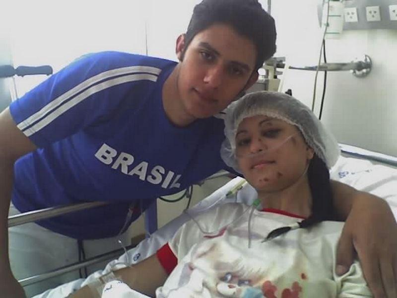 acidente de moto amputacao